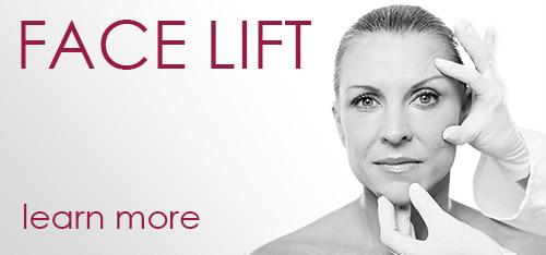 Face lift procedure